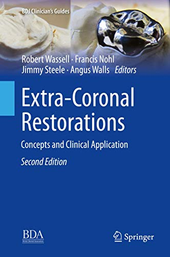Extra-Coronal Restorations: Concepts and Clinical Application (BDJ Clinician's Guides) 2019 Edition (2019) (PDF) by Robert Wassell